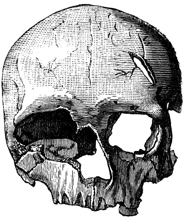 Crack Head Drawings Cro-magnon Skull