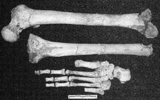 Hobbit leg and foot bones