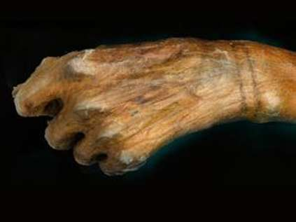 Primbon donit: Ötzi The Iceman