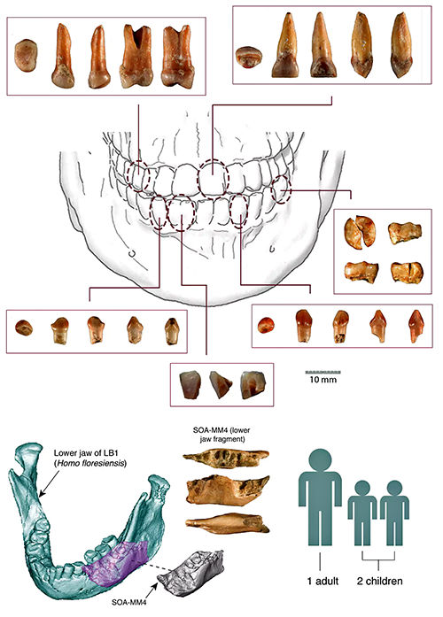 teeth diagram