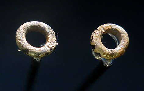 Teeth and rings
