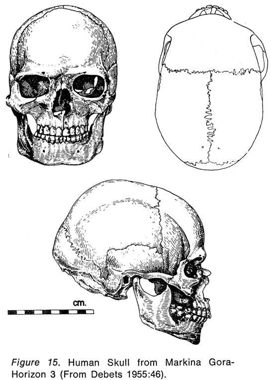 Negroid Skull